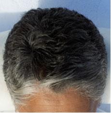 دواء جديد لمكافحة شيب الشعر مستخلص من